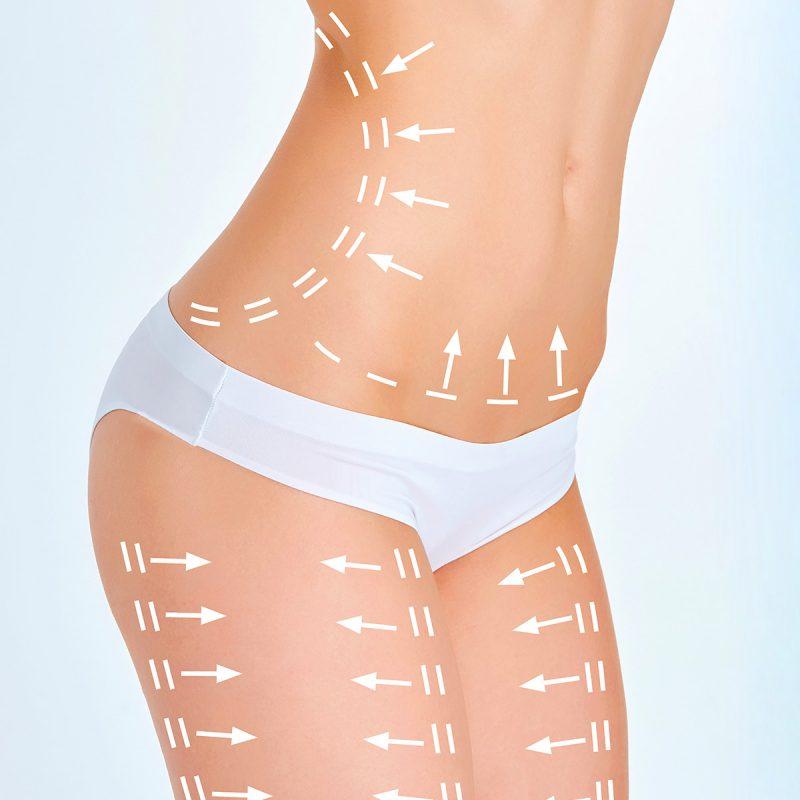chirurgie esthetique silhouette Turquie