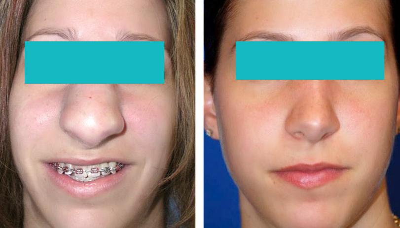 resultat rhinoplastie tunisie - avant après