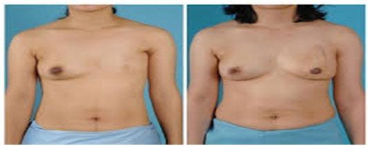 mastectomie turquie