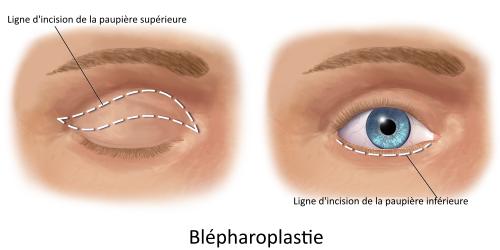 blepharoplastie Turquie