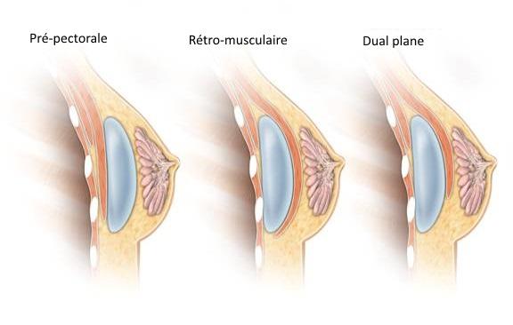 Différentes positions de la prothèse mammaire