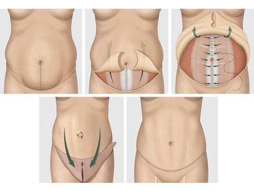 abdominoplastie Turquie