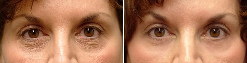 resultat-blepharoplastie-laser