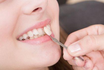 Que choisir entre le blanchiment dentaire et la pose de facettes dentaires ?