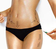 Les principales questions autour de la liposuccion
