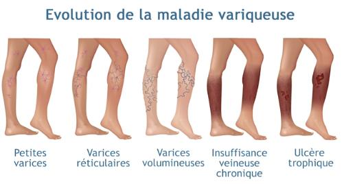 traitement varices tunisie
