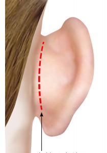 Otoplastie : la chirurgie des oreilles décollées