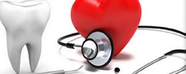 Lien entre la santé des dents et l'AVC