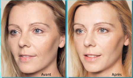 Skinbooster restylane : acide hyaluronique faiblement réticulée