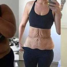 Éliminer l'excès de peau après une importante perte de poids