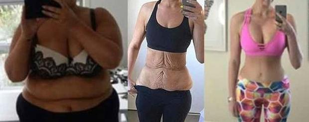chirurgie apres perte poids