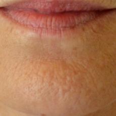 Comment éliminer les rides du menton et le rendre plus proéminent avec le Botox ?