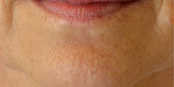 menton peau orange