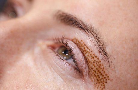 Blépharoplastie sans chirurgie : Indications et causes du relâchement des paupières