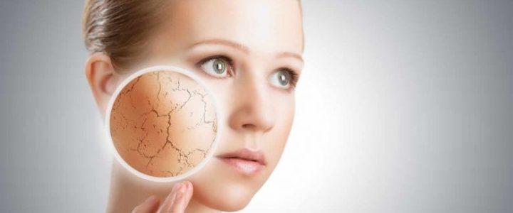 5 habitudes à adopter pour éviter d'avoir une peau sèche