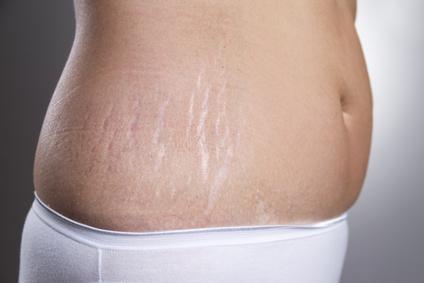 Combattre la cellulite et les vergetures par la carboxytherapie
